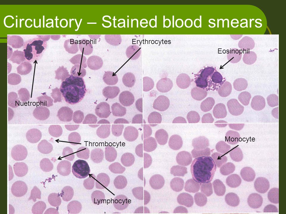 Circulatory – Stained blood smears