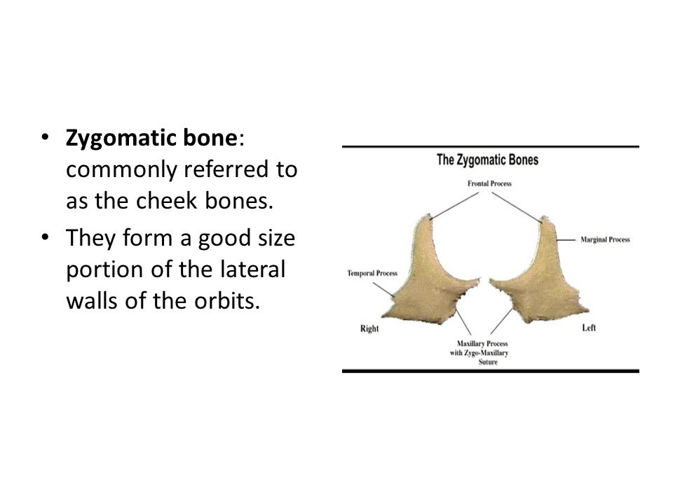 Zygomatic bone: commonly referred to as the cheek bones.
