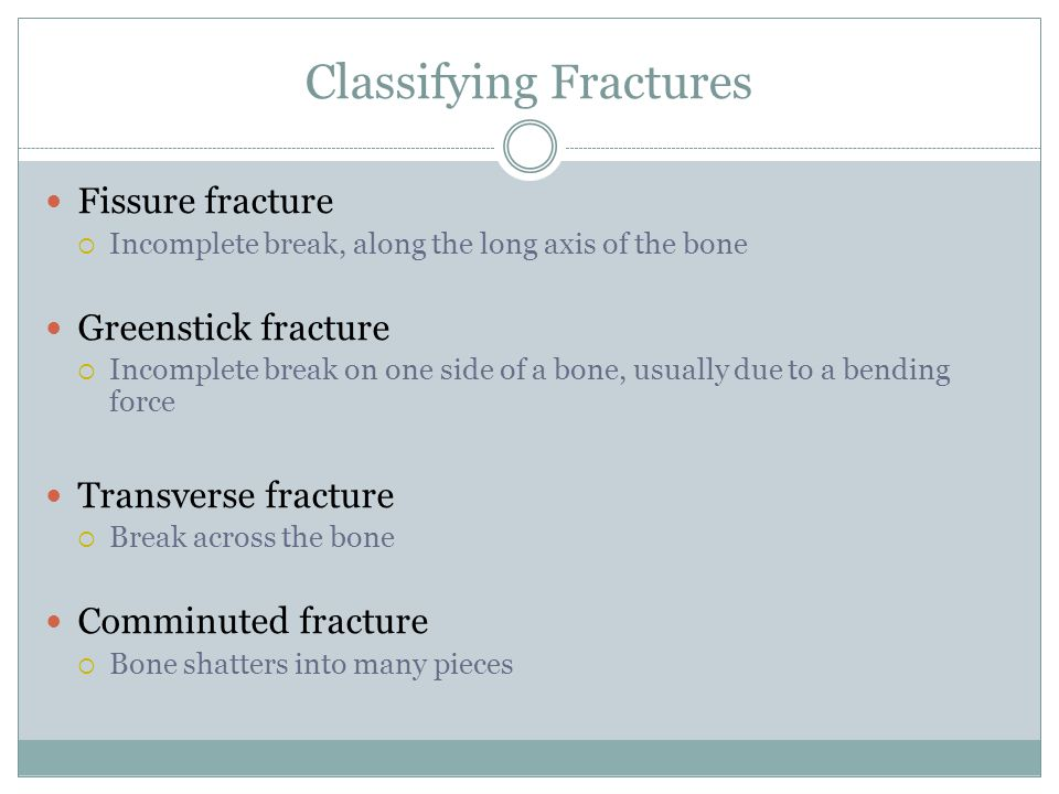Classifying Fractures
