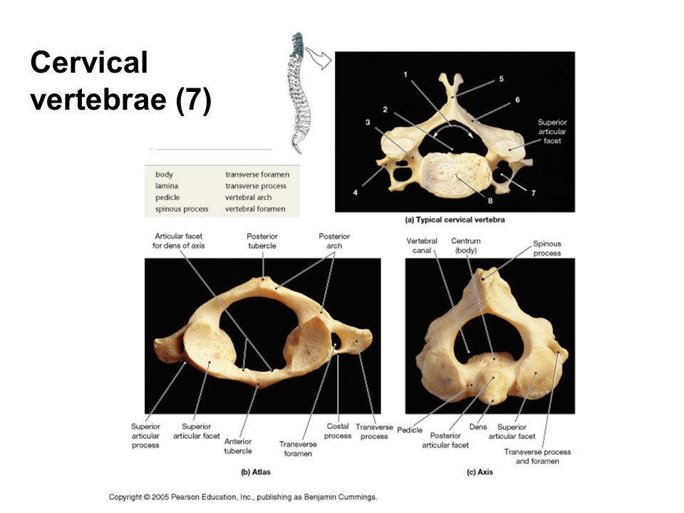Cervical vertebrae (7)