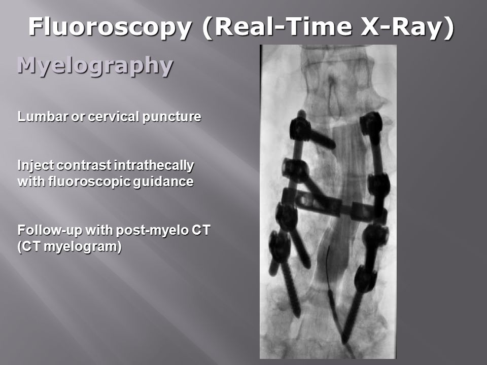 Fluoroscopy (Real-Time X-Ray)
