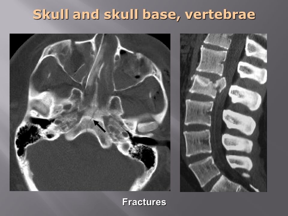 Skull and skull base, vertebrae