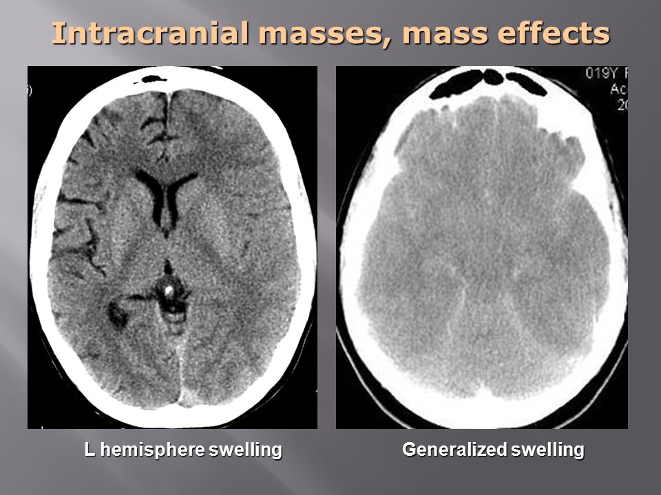 Intracranial masses, mass effects