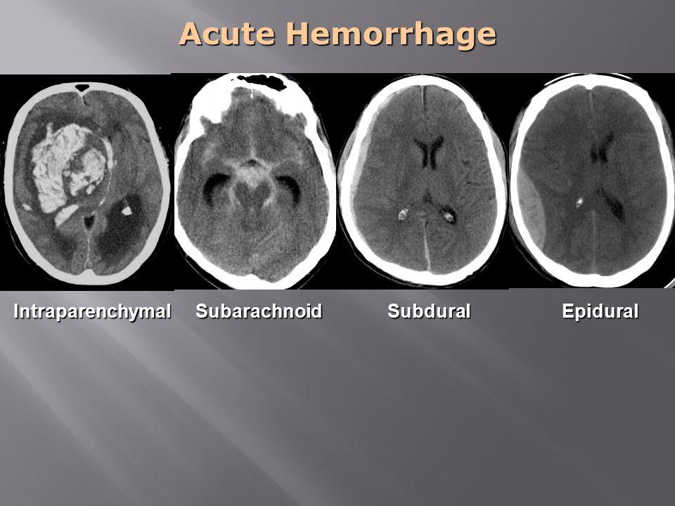 Acute Hemorrhage Intraparenchymal Subarachnoid Subdural Epidural
