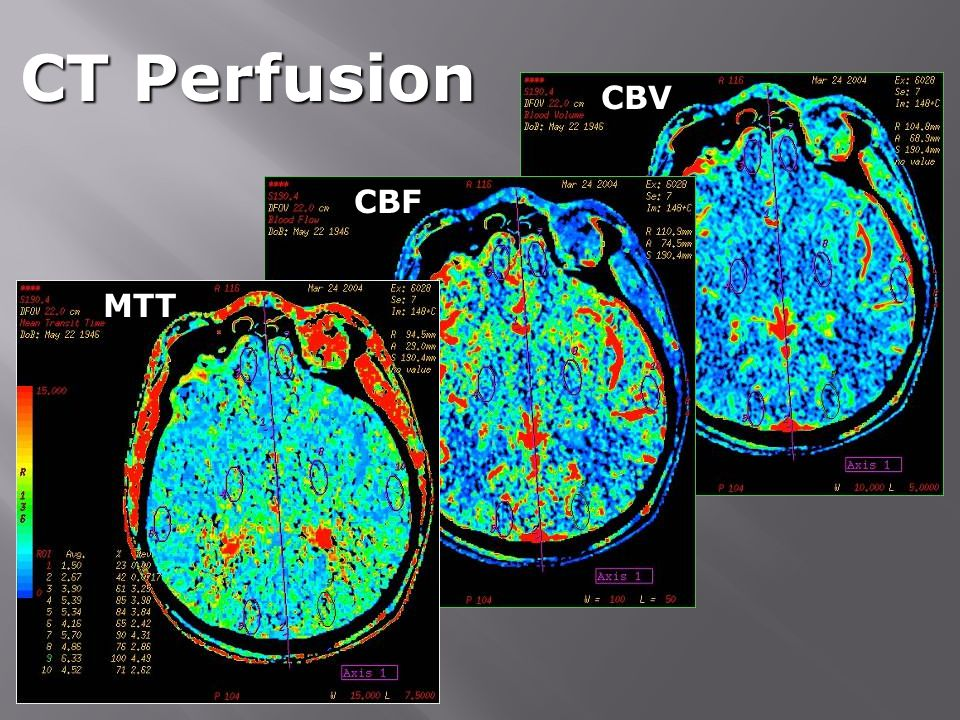 CT Perfusion CBV CBF MTT