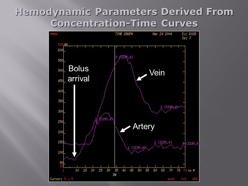 Hemodynamic Parameters Derived From Concentration-Time Curves