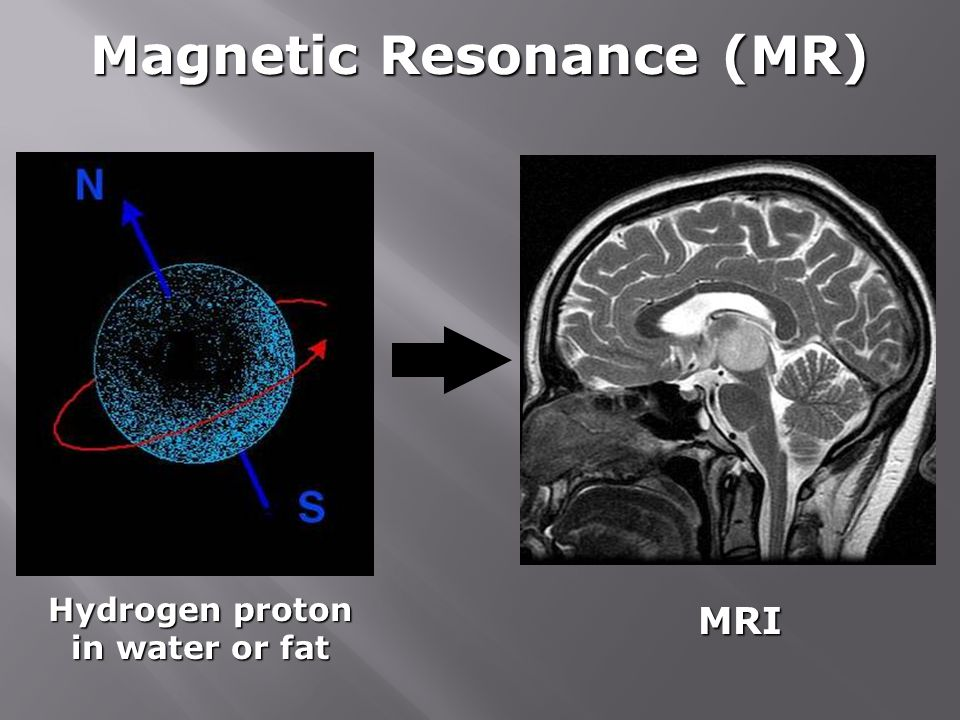 Magnetic Resonance (MR) Hydrogen proton in water or fat