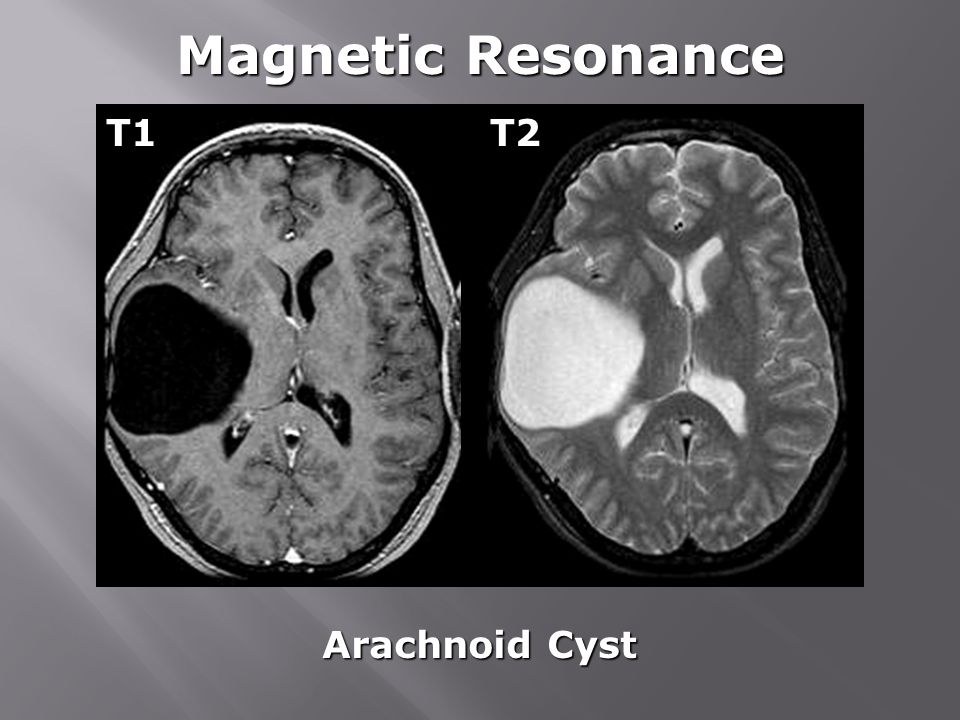 Magnetic Resonance T1 T2 Arachnoid Cyst