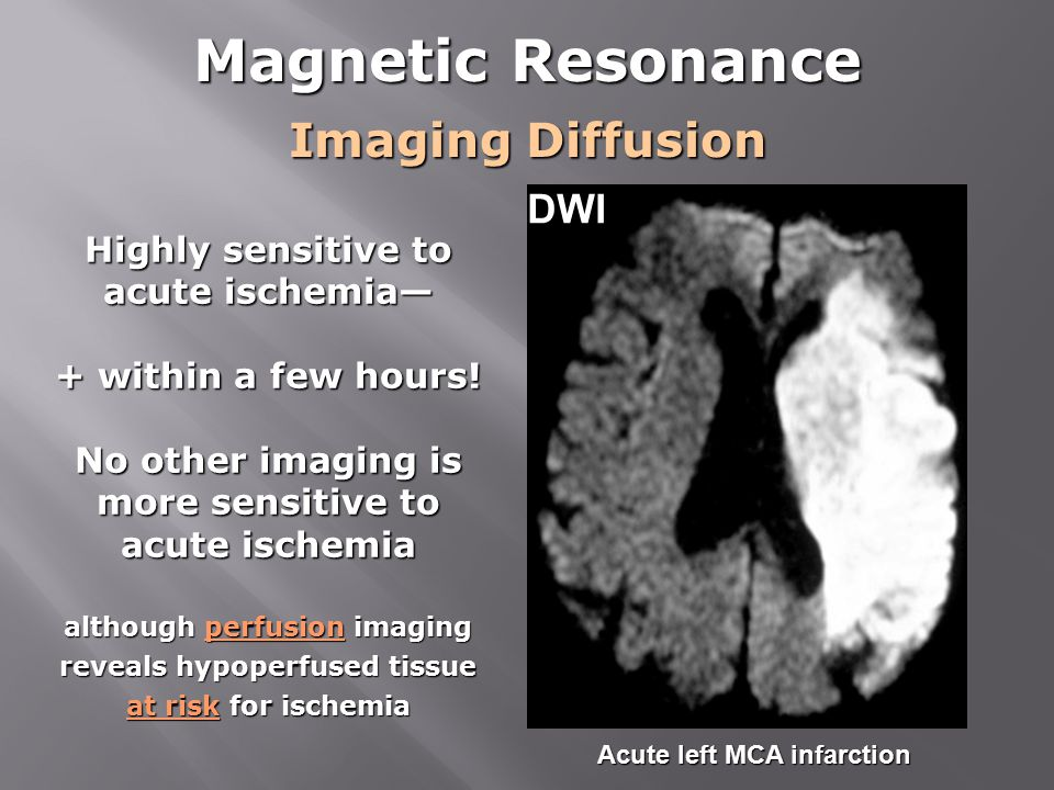 Magnetic Resonance Imaging Diffusion DWI