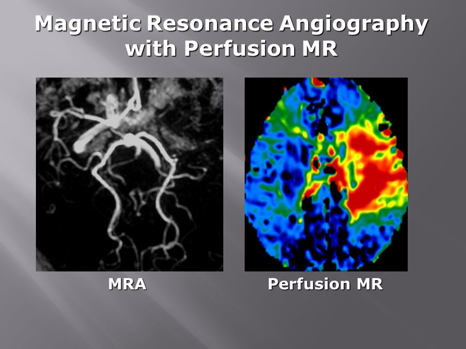 Magnetic Resonance Angiography with Perfusion MR