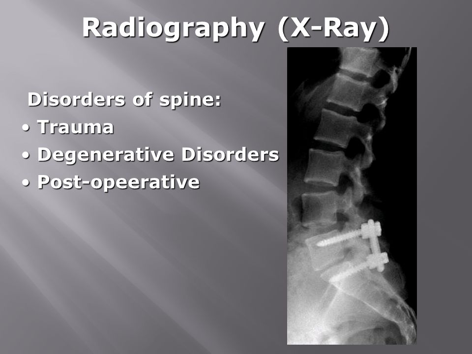Radiography (X-Ray) Disorders of spine: Trauma Degenerative Disorders
