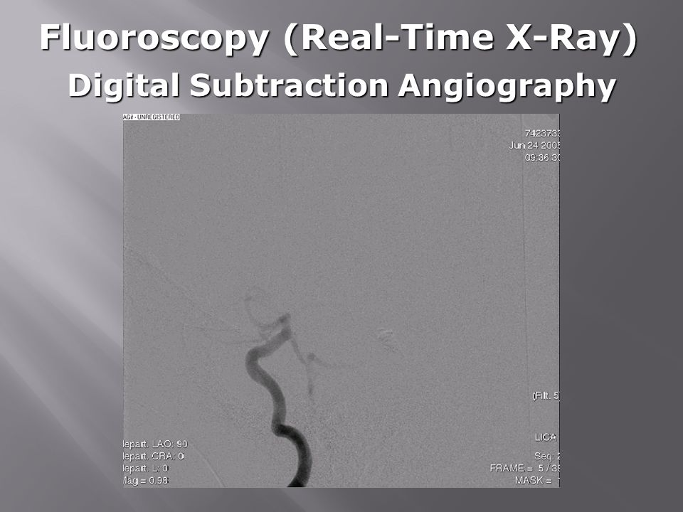 Fluoroscopy (Real-Time X-Ray) Digital Subtraction Angiography