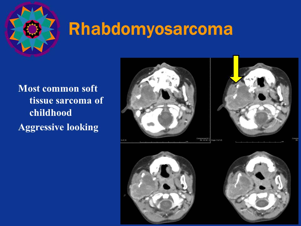 Rhabdomyosarcoma Most common soft tissue sarcoma of childhood Aggressive looking 60% of cases. 1/3 of ped rhs occur in head/neck.