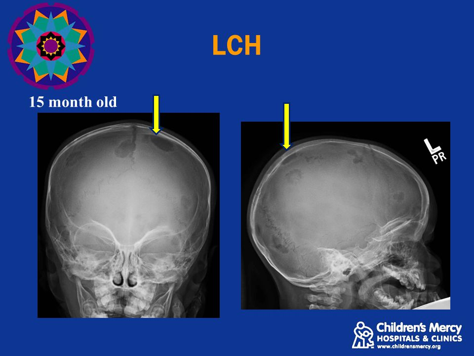 LCH 15 month old Well difined lytic lesion without sclerotic rim