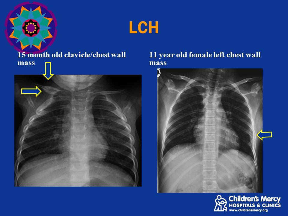 LCH 15 month old clavicle/chest wall mass