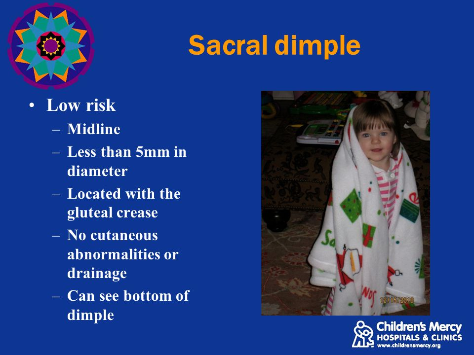 Sacral dimple Low risk Midline Less than 5mm in diameter