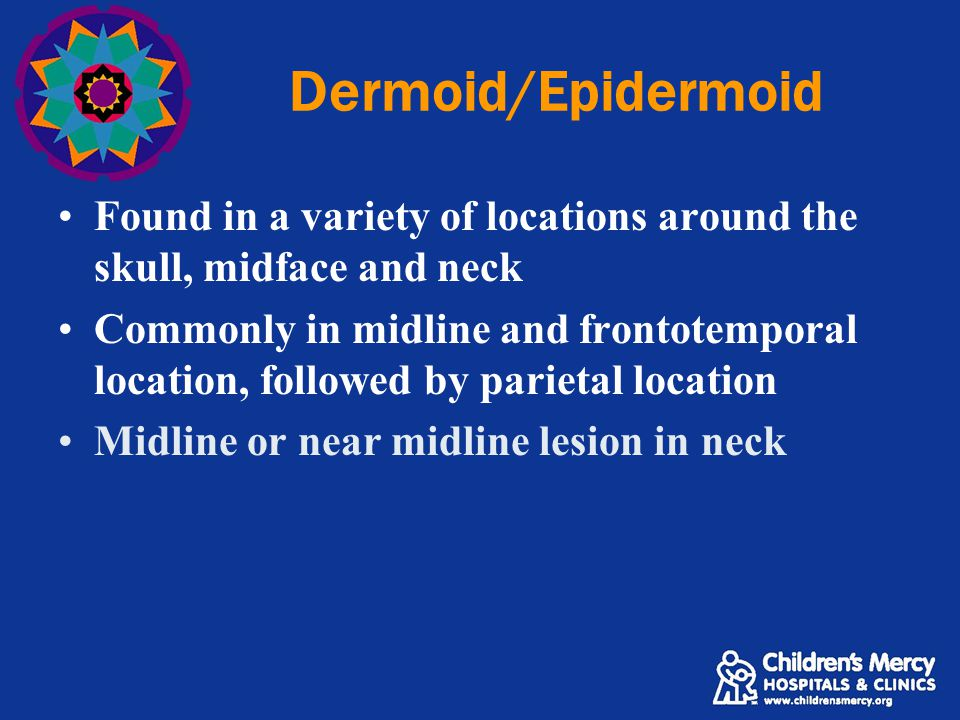 Dermoid/Epidermoid Found in a variety of locations around the skull, midface and neck.