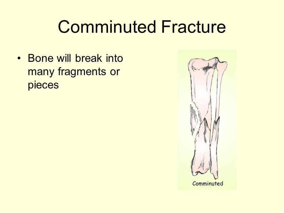 Comminuted Fracture Bone will break into many fragments or pieces