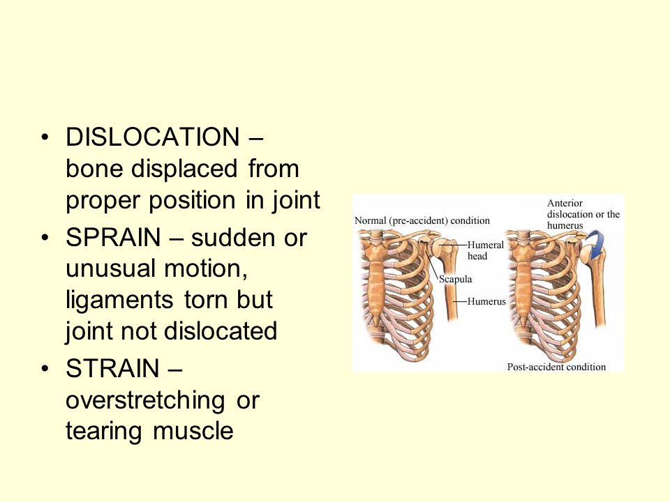 DISLOCATION – bone displaced from proper position in joint