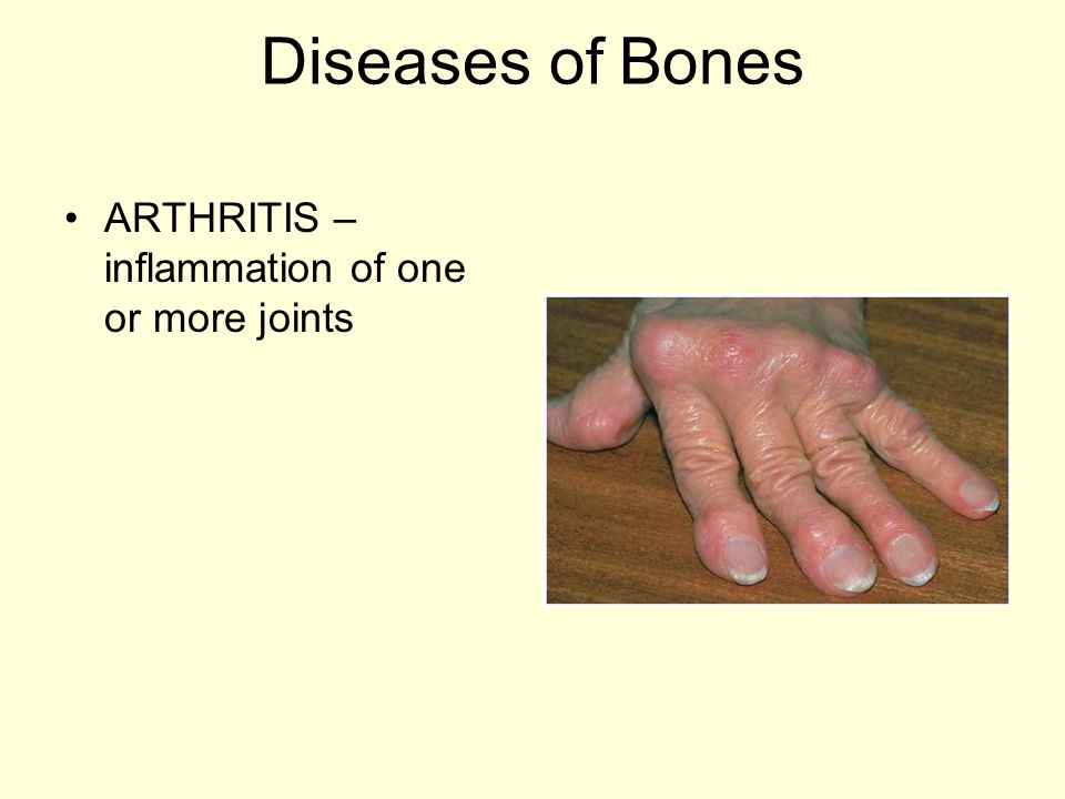 Diseases of Bones ARTHRITIS – inflammation of one or more joints