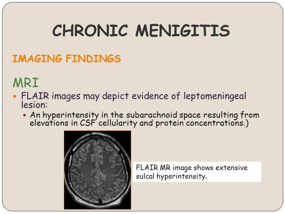 CHRONIC MENIGITIS IMAGING FINDINGS MRI