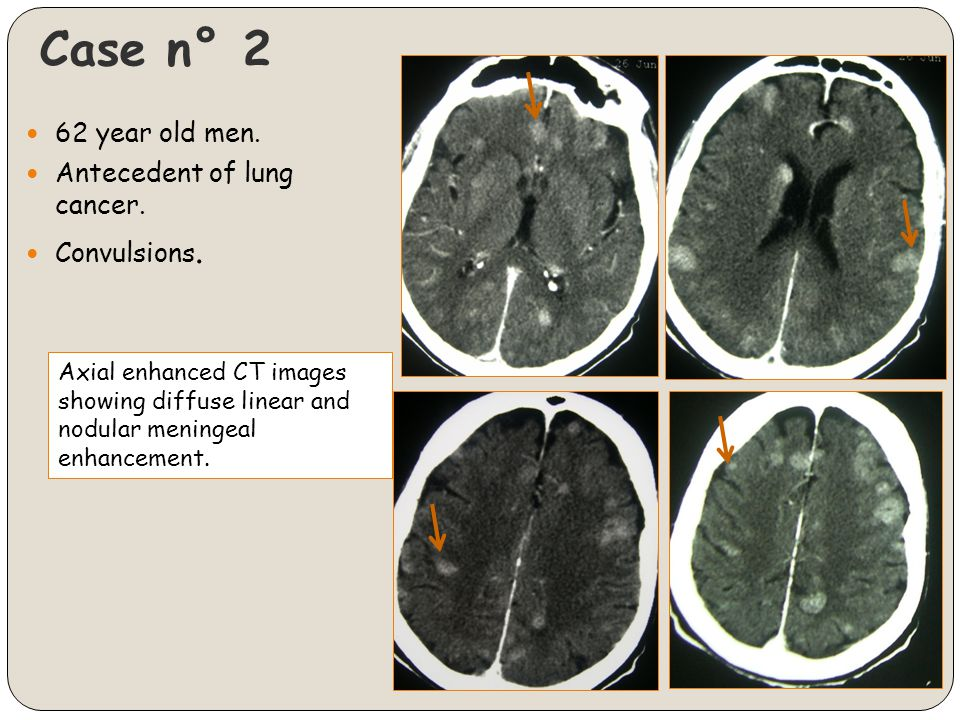 Case n° 2 62 year old men. Antecedent of lung cancer. Convulsions.