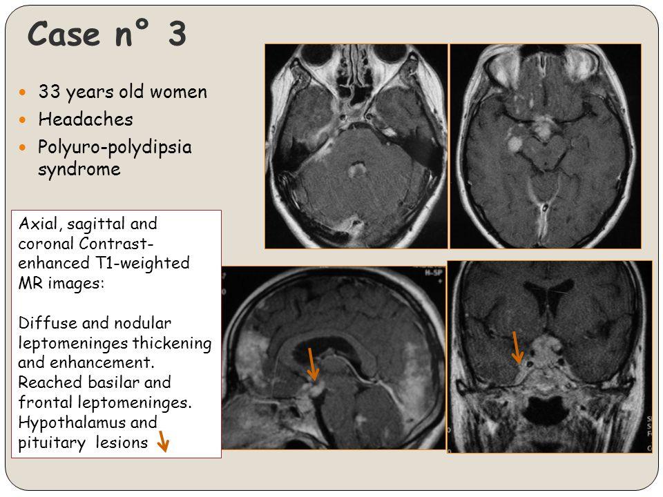 Case n° 3 33 years old women Headaches Polyuro-polydipsia syndrome