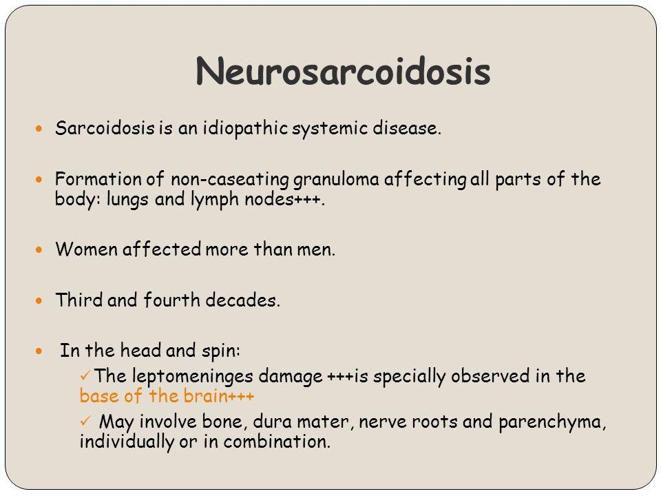 Neurosarcoidosis Sarcoidosis is an idiopathic systemic disease.