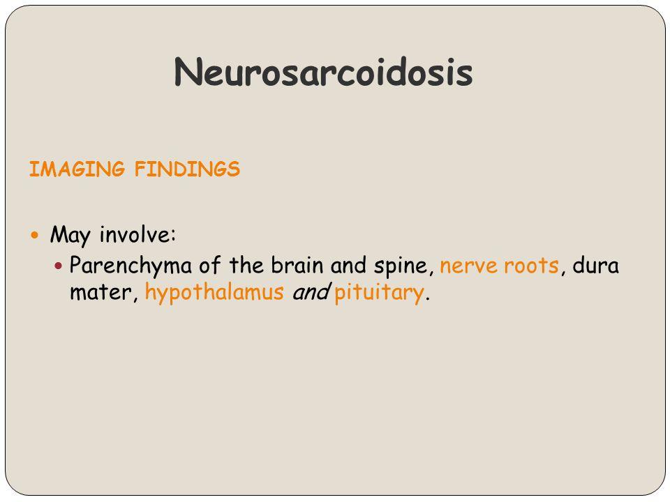 Neurosarcoidosis IMAGING FINDINGS May involve: