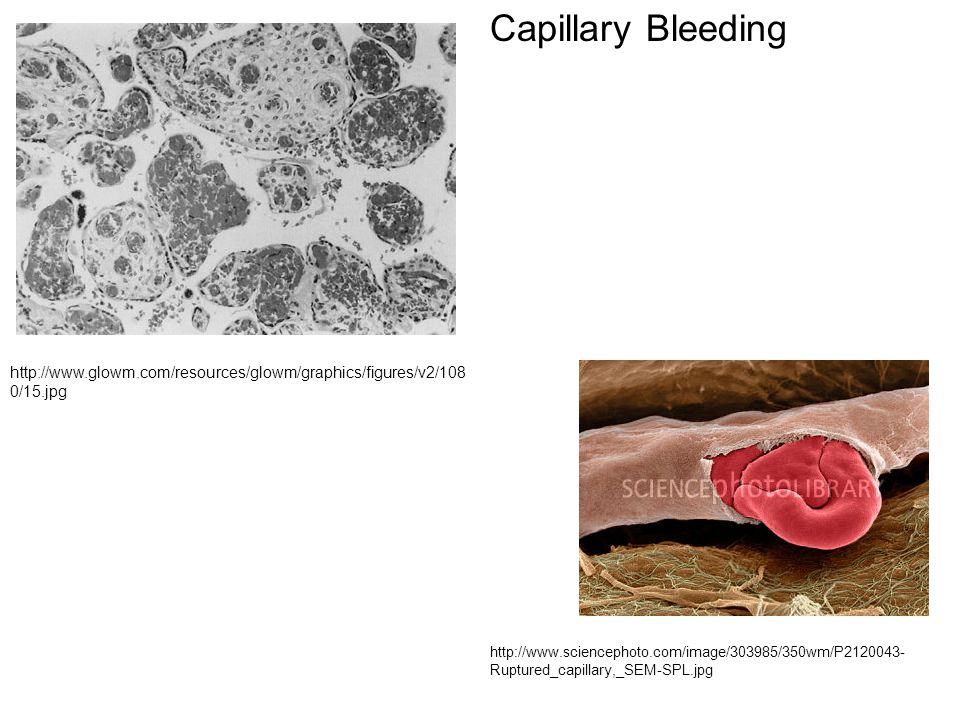 Capillary Bleeding http://www.glowm.com/resources/glowm/graphics/figures/v2/1080/15.jpg.