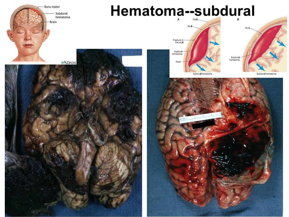 Hematoma--subdural From PIER Image 1846, 1854