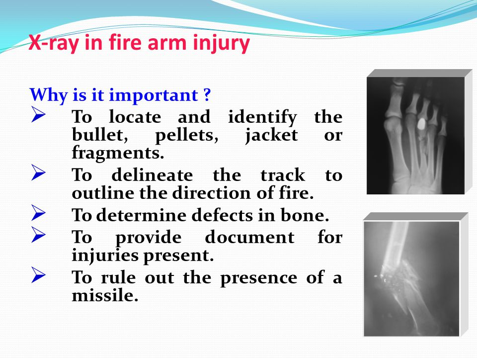 X-ray in fire arm injury