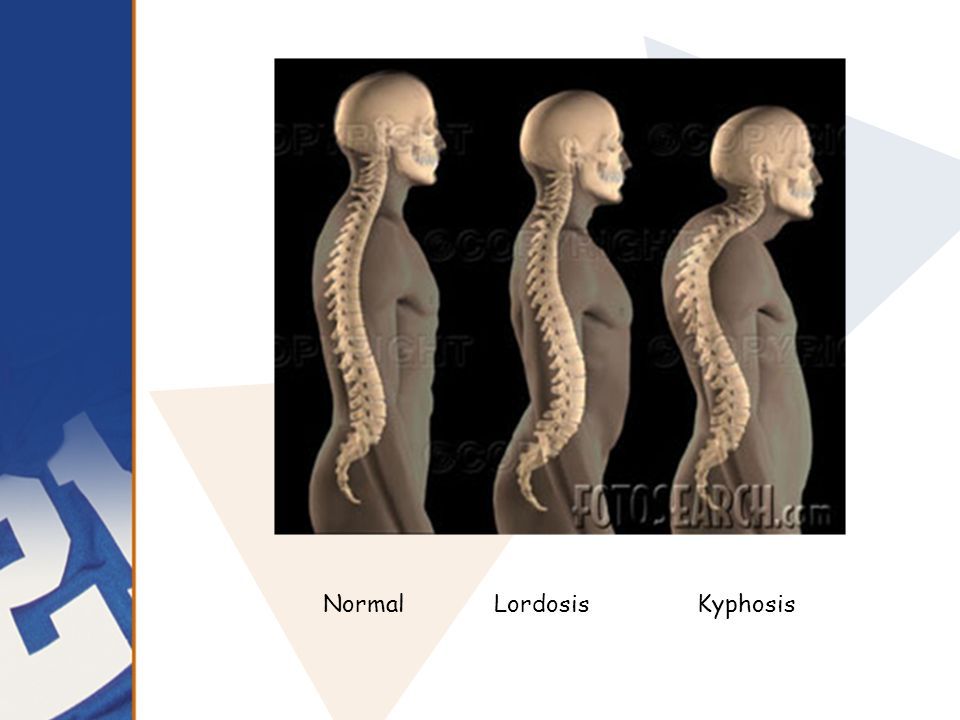 Normal Lordosis Kyphosis