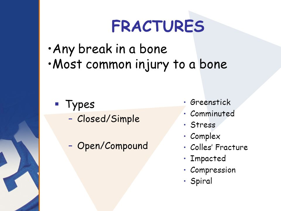 FRACTURES Any break in a bone Most common injury to a bone Types