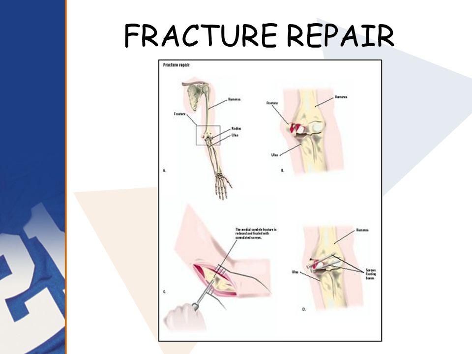 FRACTURE REPAIR Skeletal System