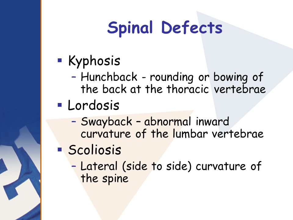 Spinal Defects Kyphosis Lordosis Scoliosis