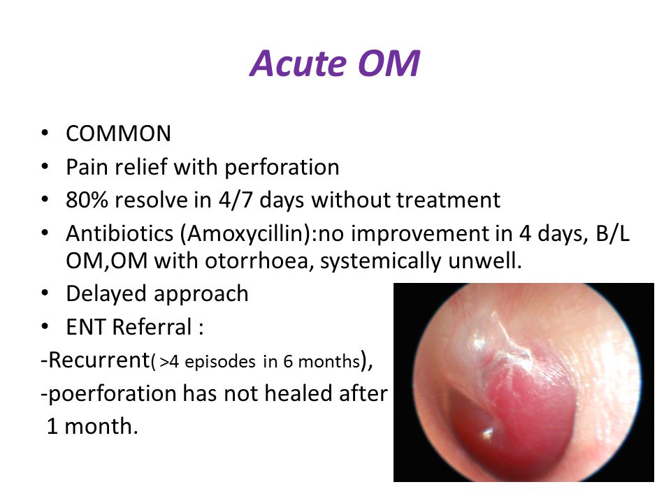 Acute OM COMMON Pain relief with perforation
