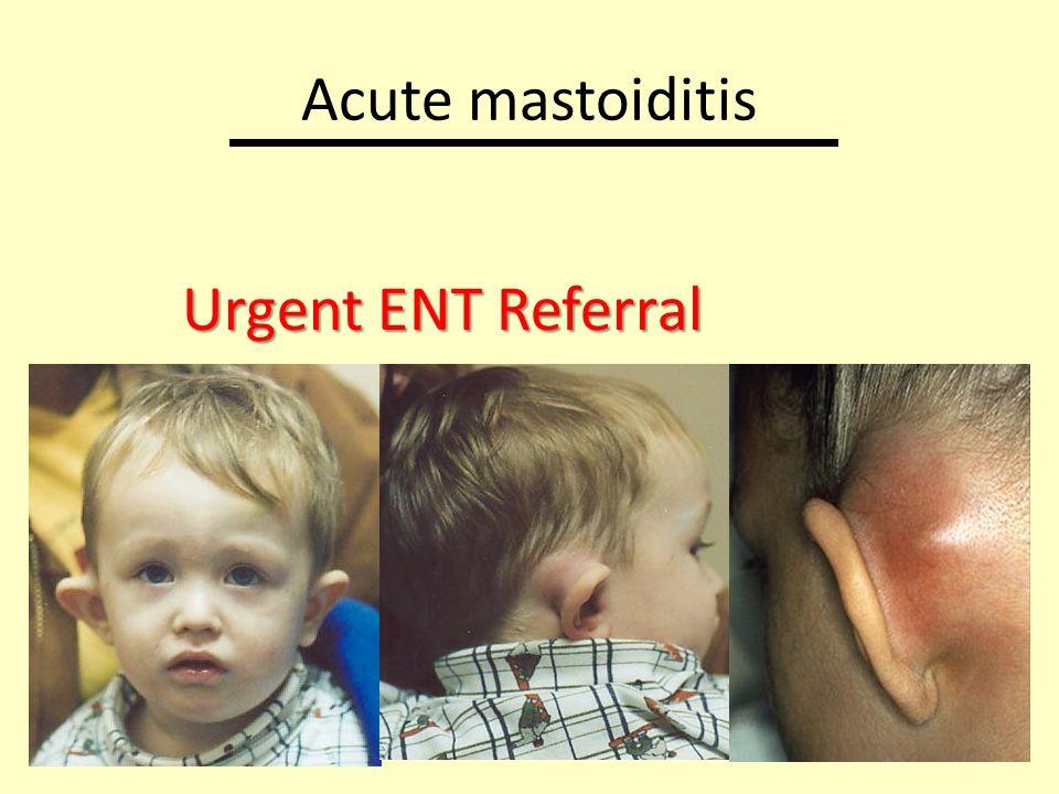 Acute mastoiditis Urgent ENT Referral
