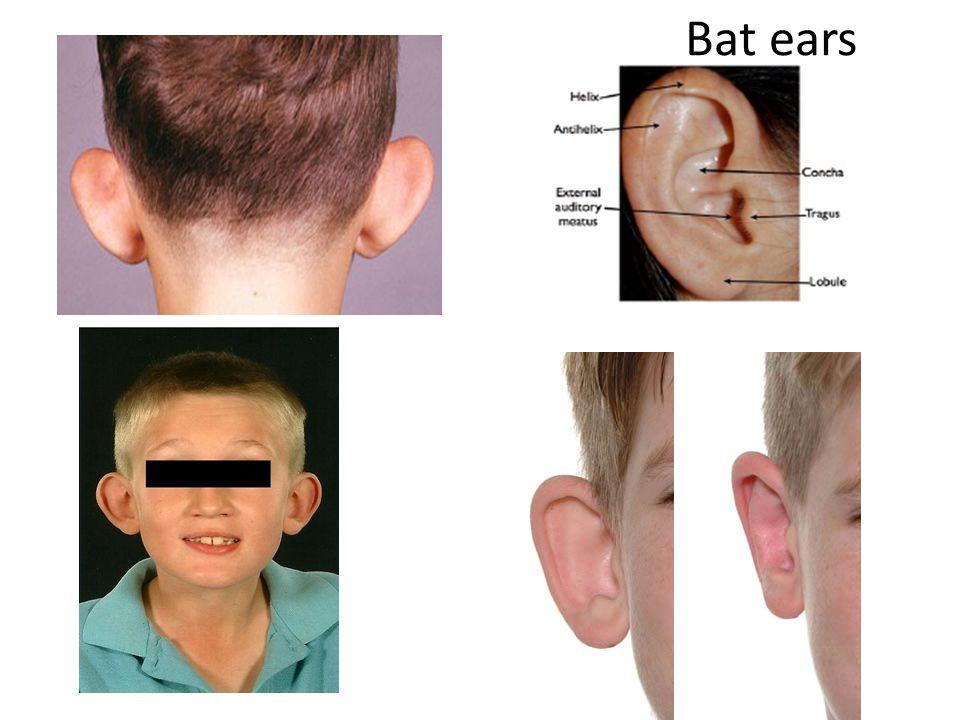 Bat ears 1