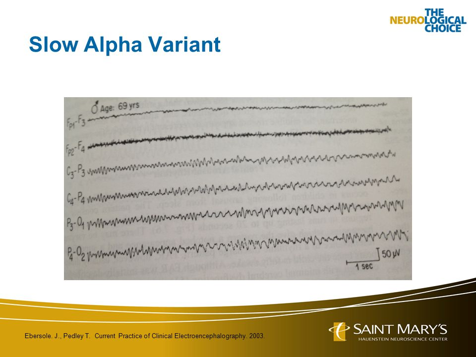 Slow Alpha Variant Ebersole. J., Pedley T. Current Practice of Clinical Electroencephalography.