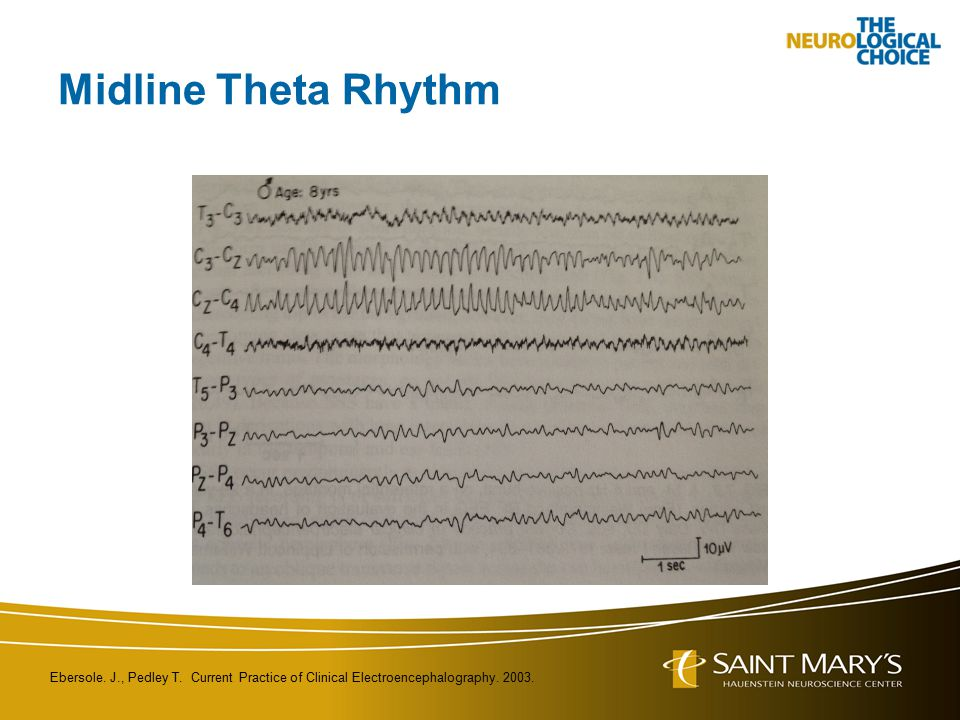 Midline Theta Rhythm Ebersole. J., Pedley T. Current Practice of Clinical Electroencephalography.