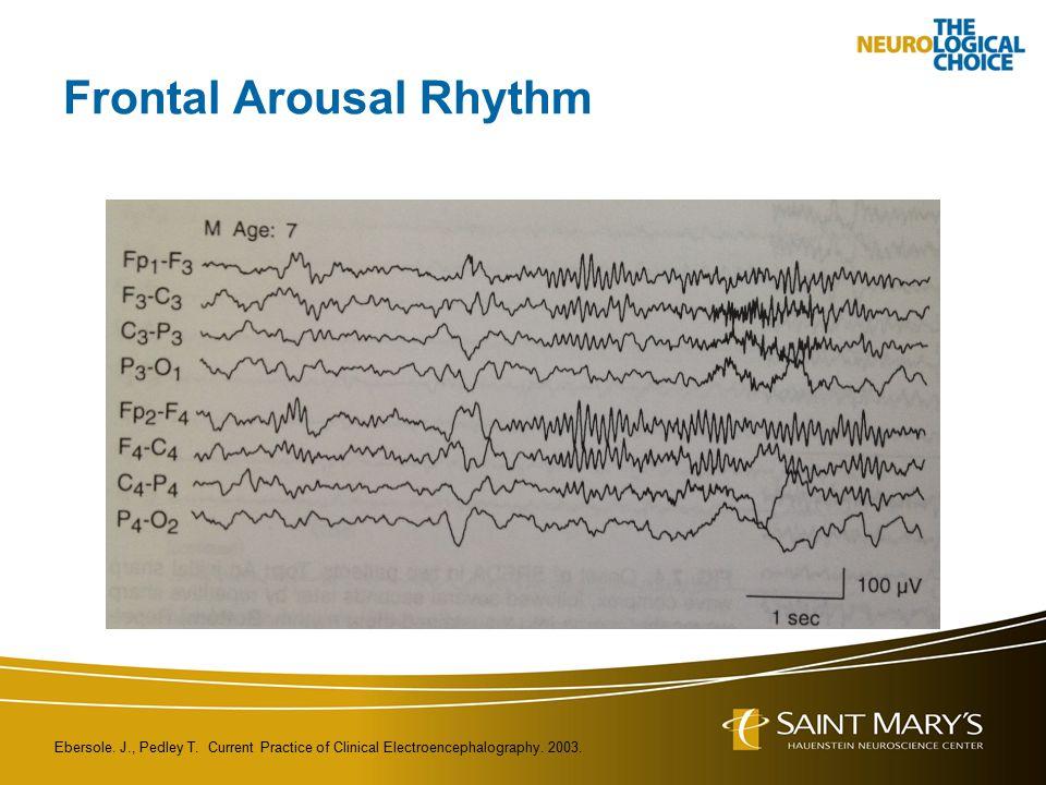 Frontal Arousal Rhythm