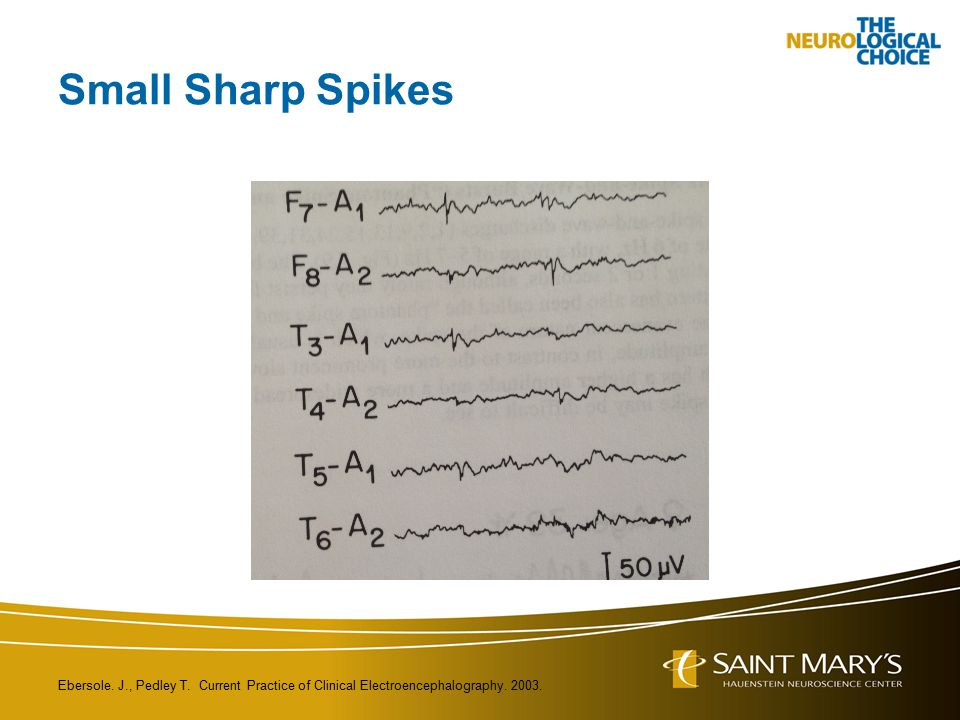 Small Sharp Spikes Ebersole. J., Pedley T. Current Practice of Clinical Electroencephalography.