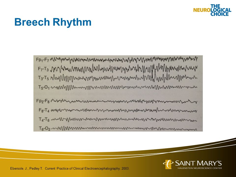 Breech Rhythm Ebersole. J., Pedley T. Current Practice of Clinical Electroencephalography. 2003.