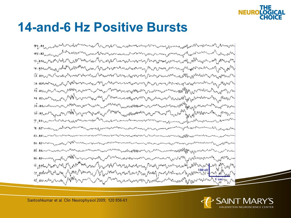 14-and-6 Hz Positive Bursts