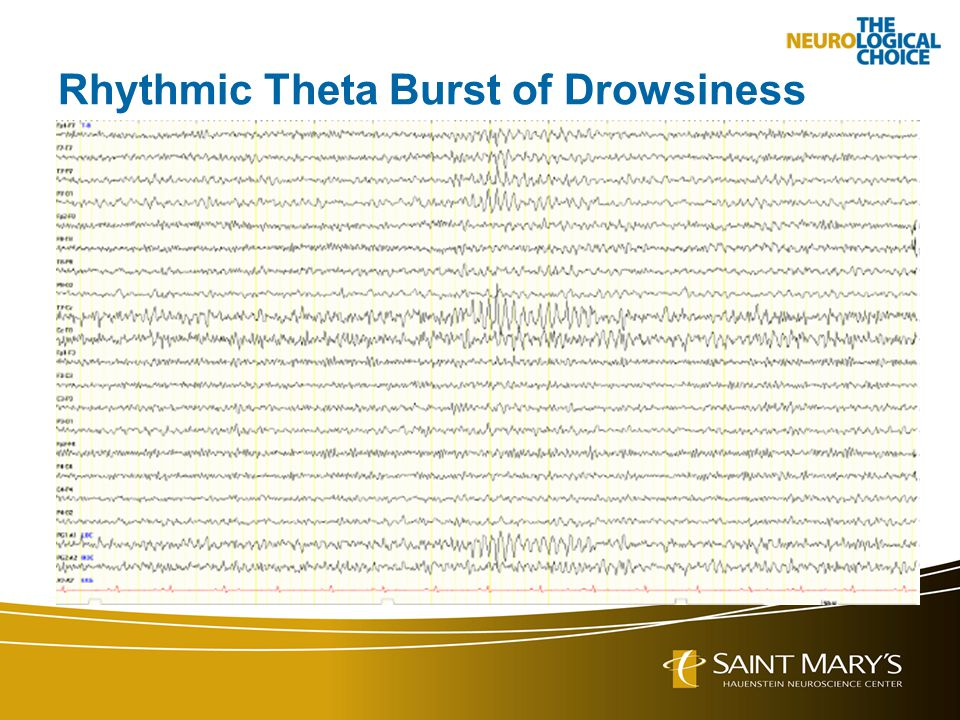 Rhythmic Theta Burst of Drowsiness