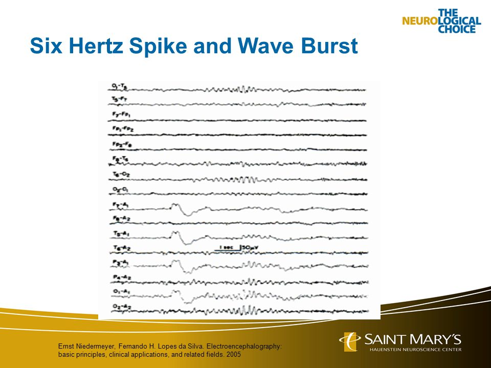 Six Hertz Spike and Wave Burst