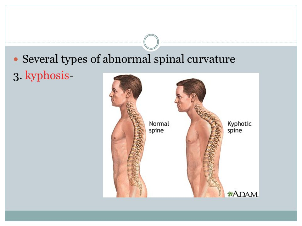 Several types of abnormal spinal curvature