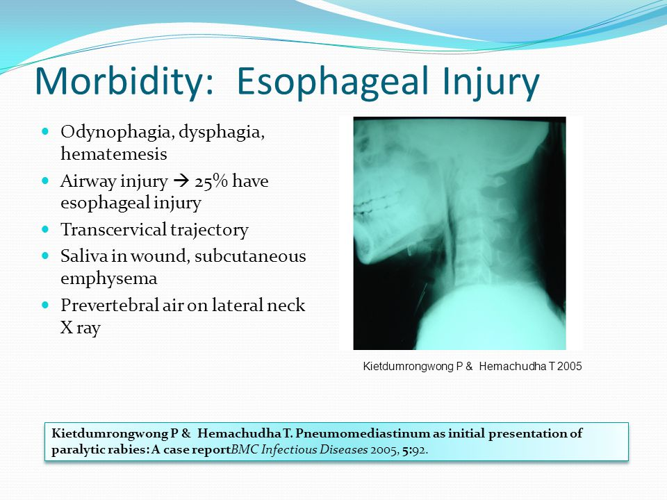 Morbidity: Esophageal Injury