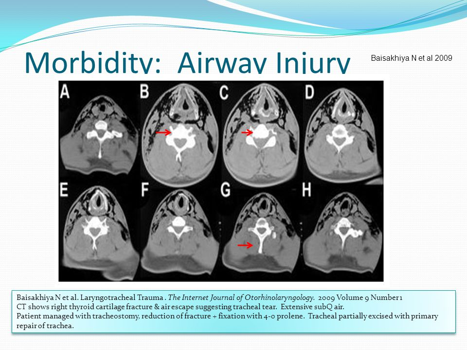 Morbidity: Airway Injury